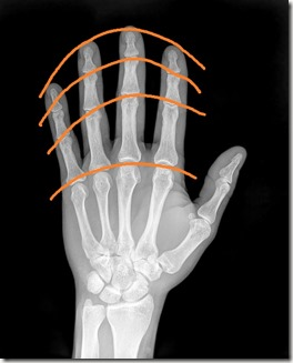 courbe phalanges